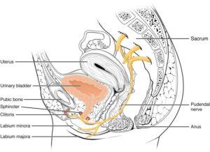 Síndrome Atrapamiento del Nervio Pudendo